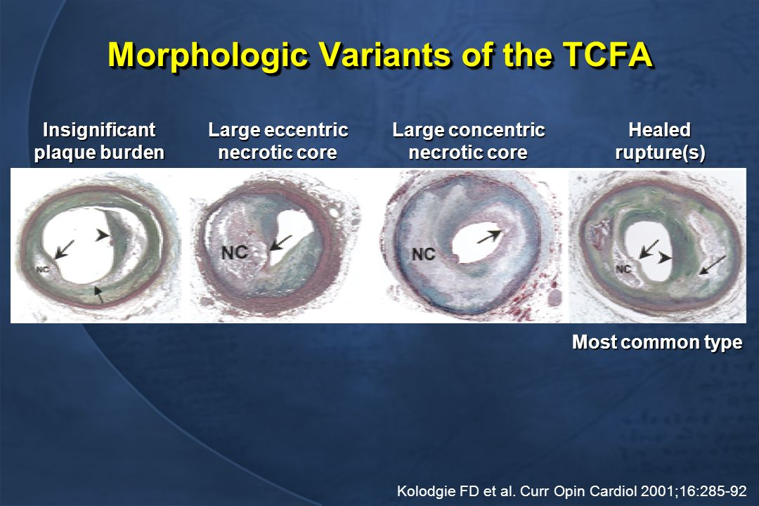 Morphologic Variants of the TCFA Insignificant plaque burden Large eccentric necrotic core Large concentric necrotic core Healedrupture(s) Most common type Kolodgie FD et al.