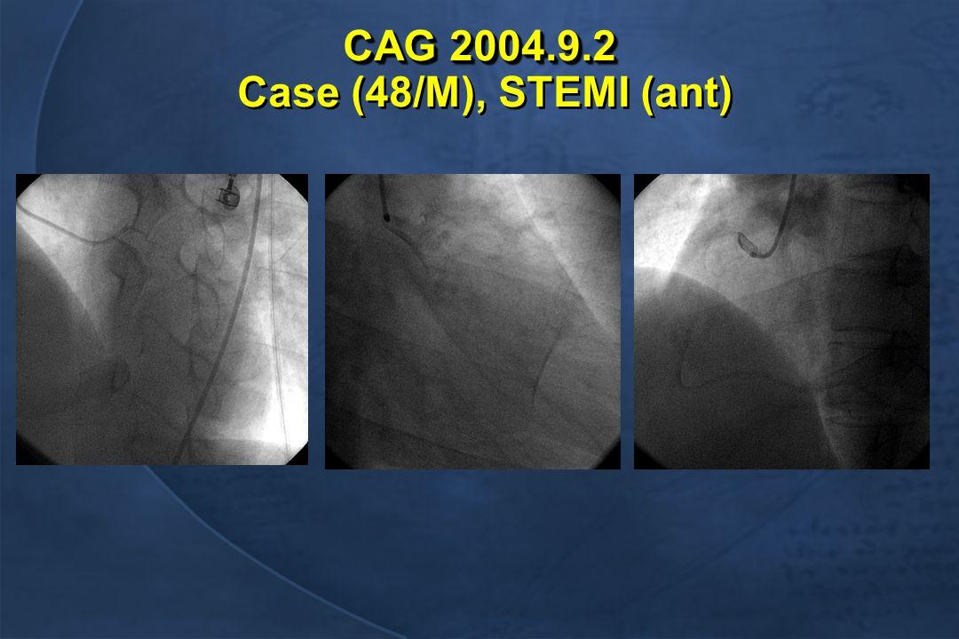 CAG 2004.9.2 CAG 2004.9.2 Case (48/M), STEMI (ant)