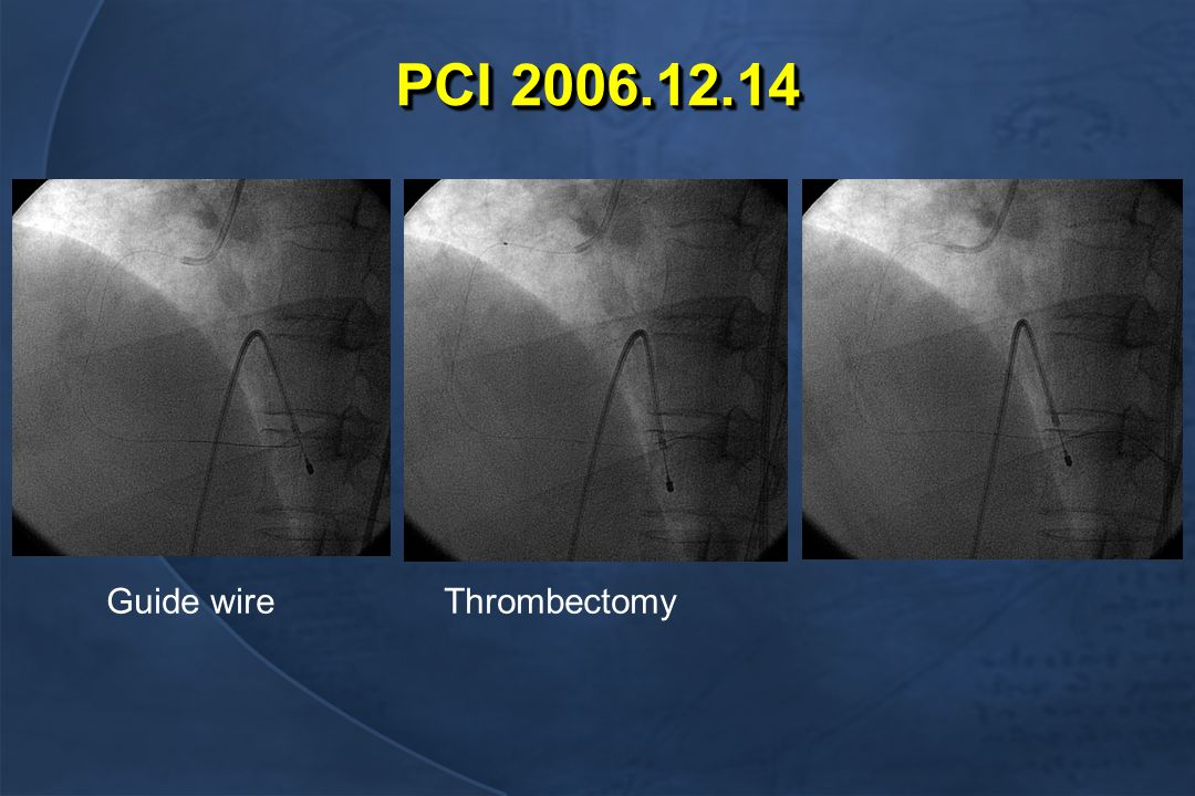 PCI 2006.12.14 Guide wireThrombectomy