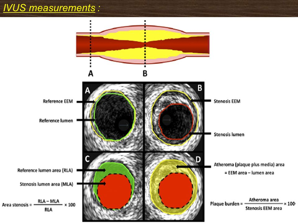 IVUS measurements :