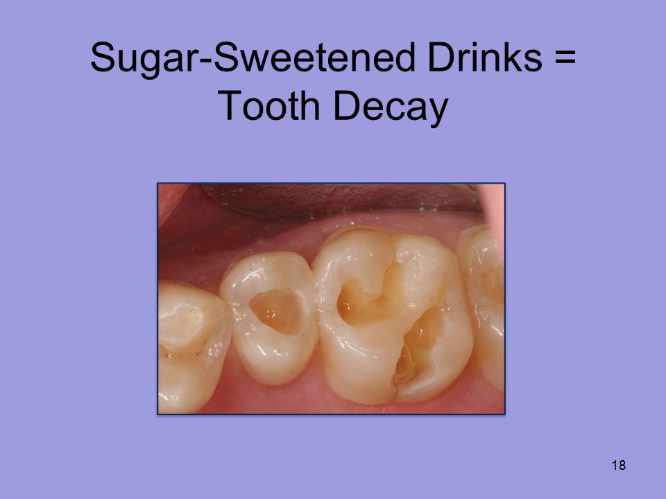 Sugar-Sweetened Drinks = Tooth Decay 18