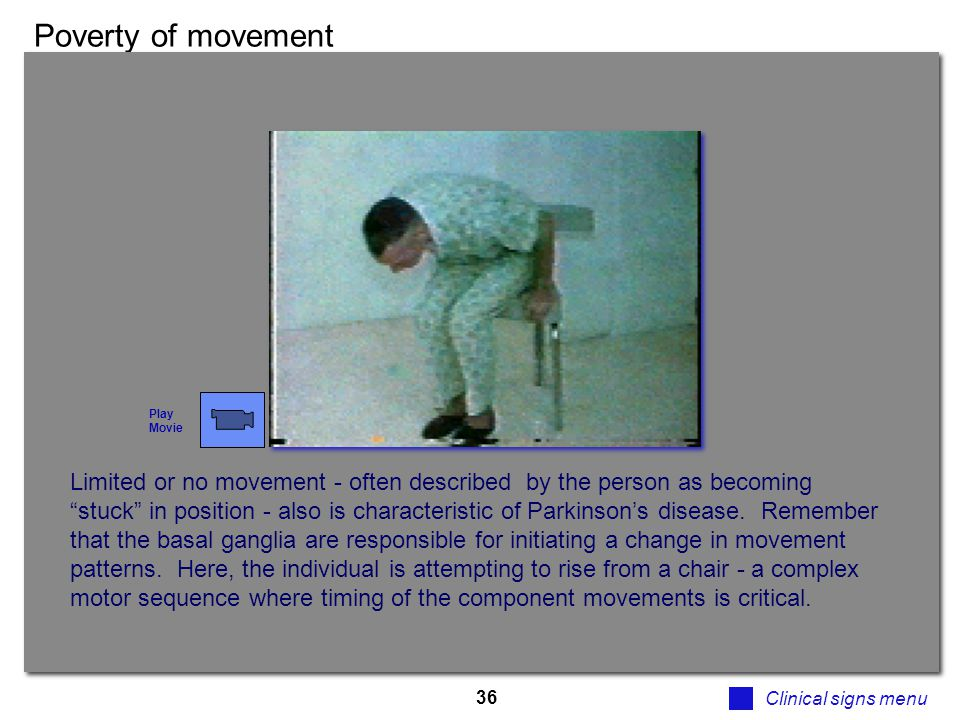 """36 Poverty of movement Clinical signs menu Limited or no movement - often described by the person as becoming """"stuck"""" in position - also is characteri"""