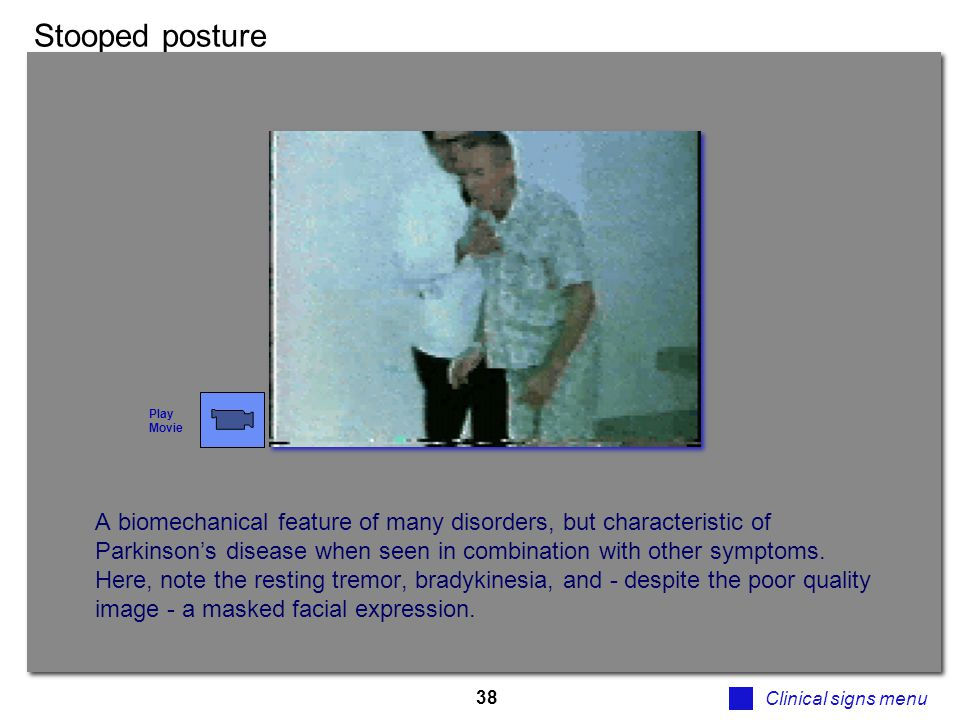 38 Stooped posture Clinical signs menu A biomechanical feature of many disorders, but characteristic of Parkinson's disease when seen in combination w