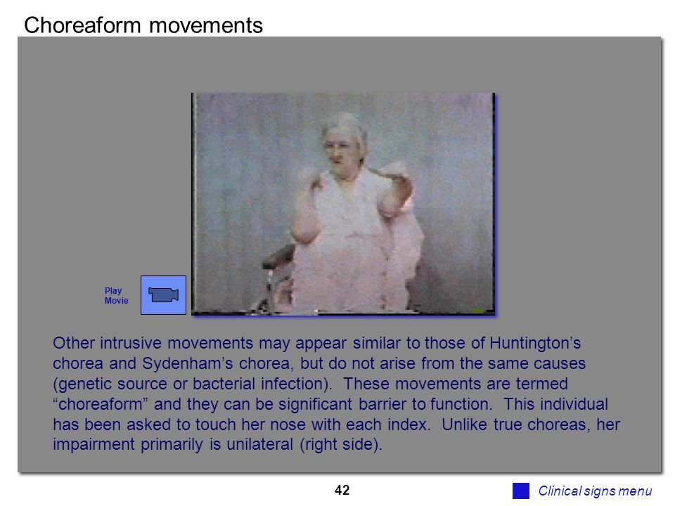 42 Choreaform movements Clinical signs menu Other intrusive movements may appear similar to those of Huntington's chorea and Sydenham's chorea, but do