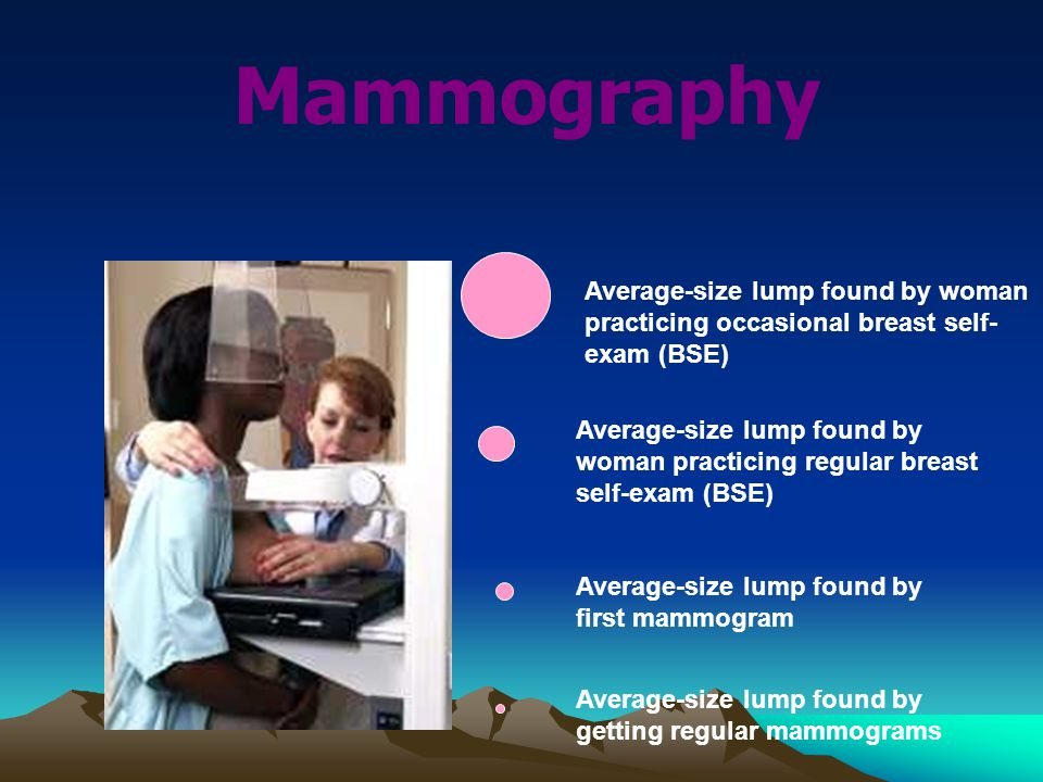 Mammography Average-size lump found by woman practicing occasional breast self- exam (BSE) Average-size lump found by woman practicing regular breast