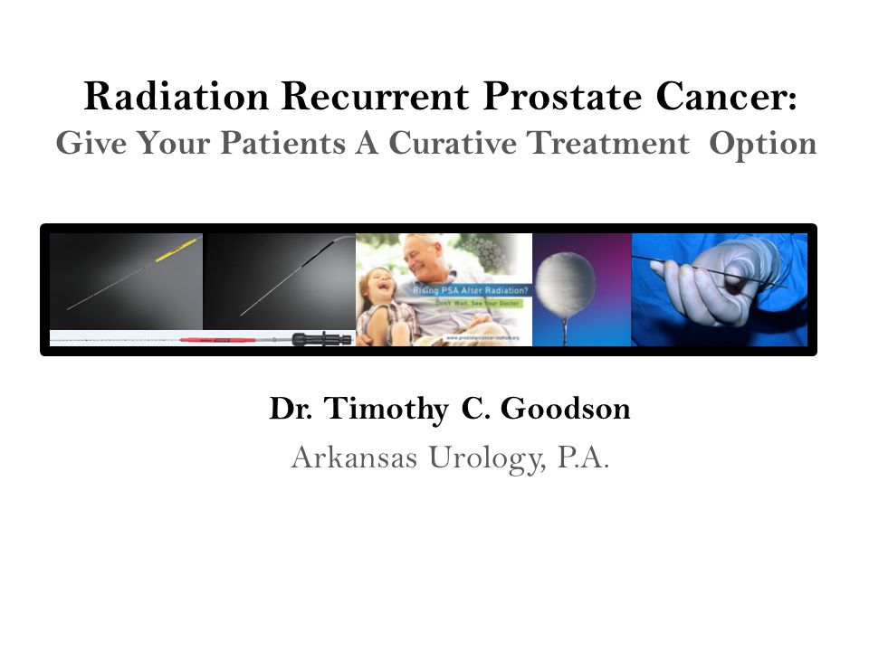 Radiation Recurrent Prostate Cancer: Give Your Patients A Curative Treatment Option Dr.