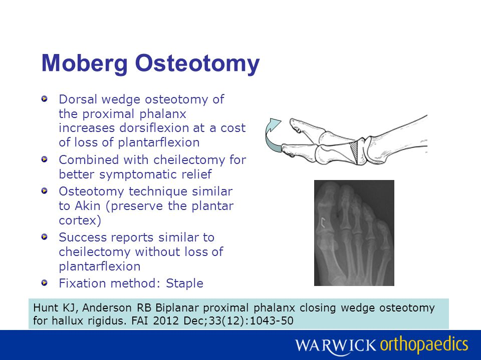 Moberg Osteotomy Dorsal wedge osteotomy of the proximal phalanx increases dorsiflexion at a cost of loss of plantarflexion Combined with cheilectomy for better symptomatic relief Osteotomy technique similar to Akin (preserve the plantar cortex) Success reports similar to cheilectomy without loss of plantarflexion Fixation method: Staple Hunt KJ, Anderson RB Biplanar proximal phalanx closing wedge osteotomy for hallux rigidus.