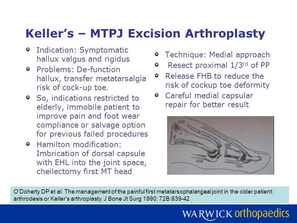 Keller's – MTPJ Excision Arthroplasty Indication: Symptomatic hallux valgus and rigidus Problems: De-function hallux, transfer metatarsalgia risk of cock-up toe.