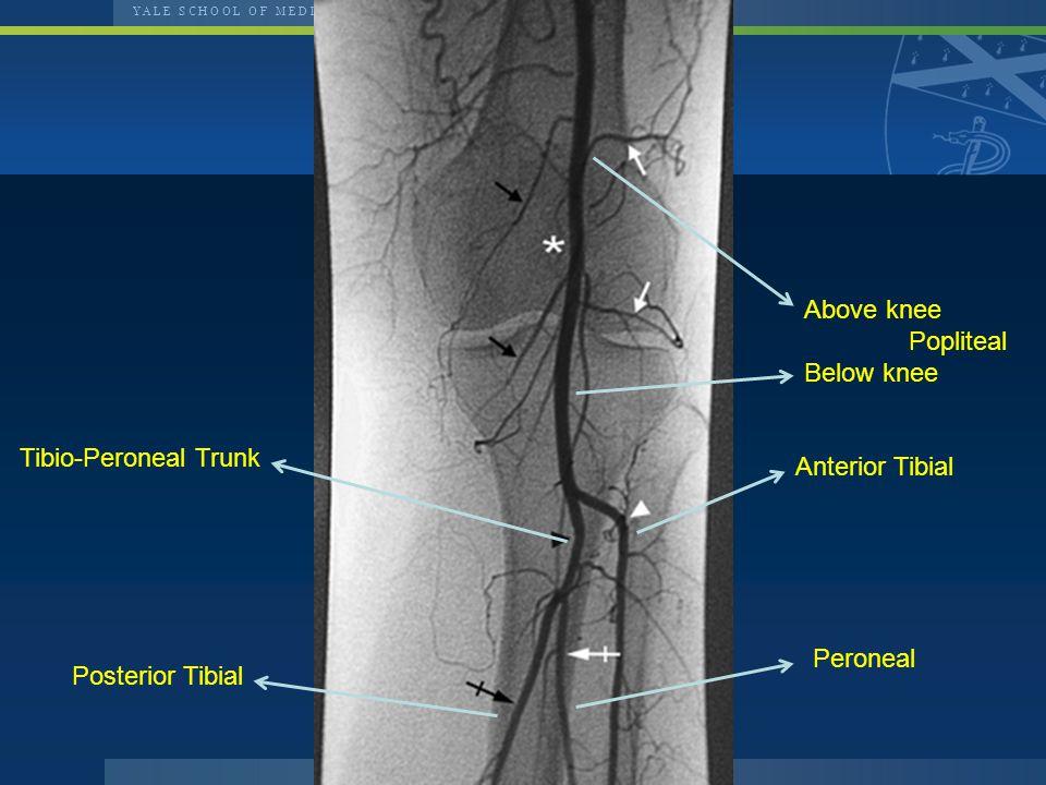 Above knee Popliteal Below knee Anterior Tibial Tibio-Peroneal Trunk Peroneal Posterior Tibial