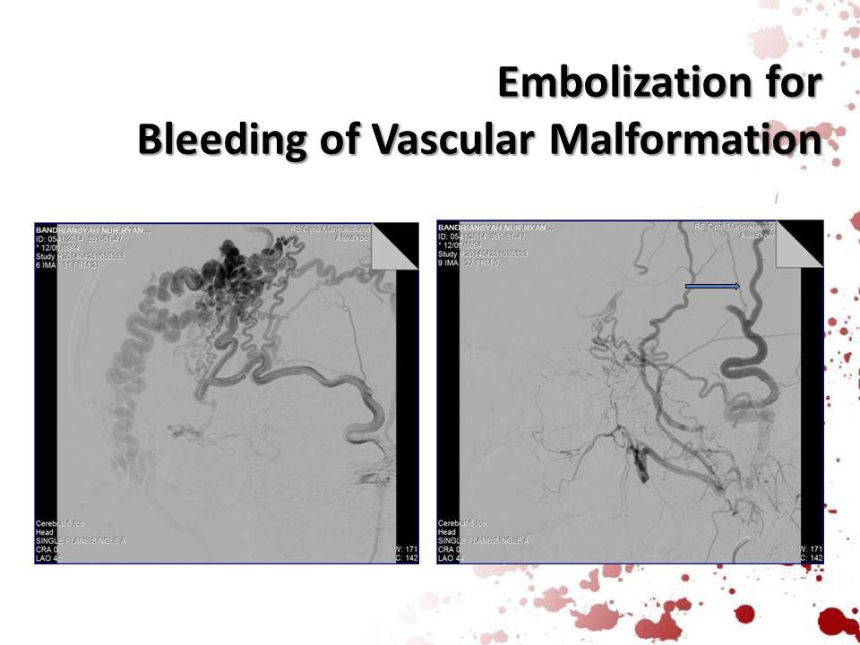 Embolization for Bleeding of Vascular Malformation