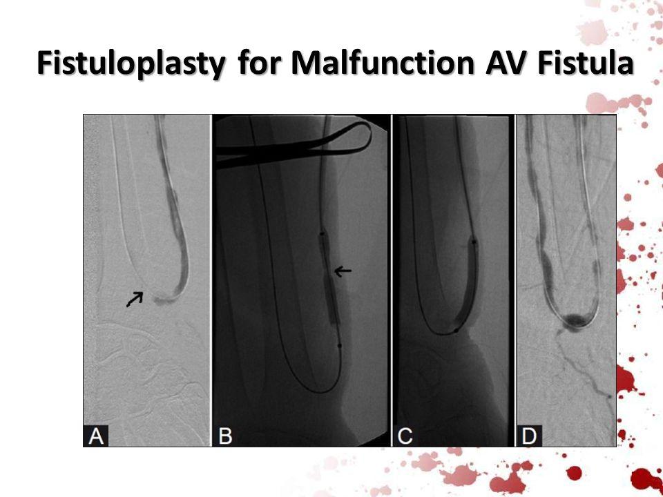 Fistuloplasty for Malfunction AV Fistula