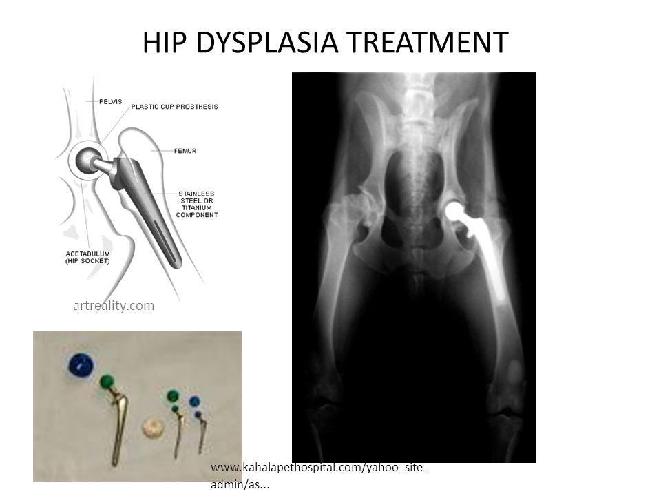 HIP DYSPLASIA TREATMENT www.kahalapethospital.com/yahoo_site_ admin/as... artreality.com