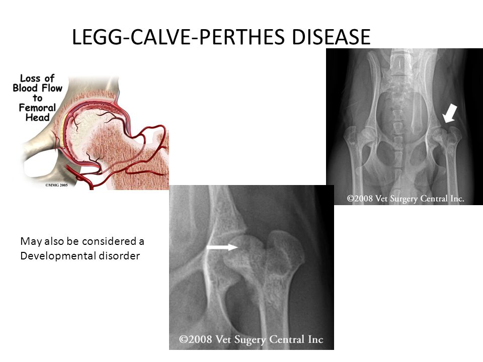 LEGG-CALVE-PERTHES DISEASE May also be considered a Developmental disorder