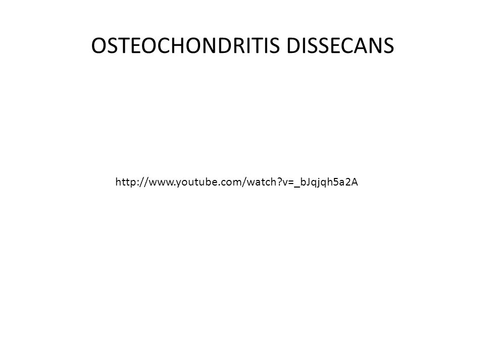 OSTEOCHONDRITIS DISSECANS http://www.youtube.com/watch?v=_bJqjqh5a2A
