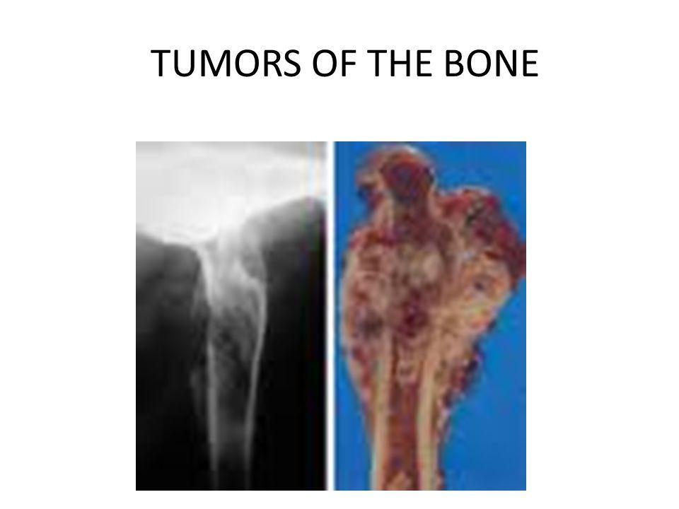 TUMORS OF THE BONE
