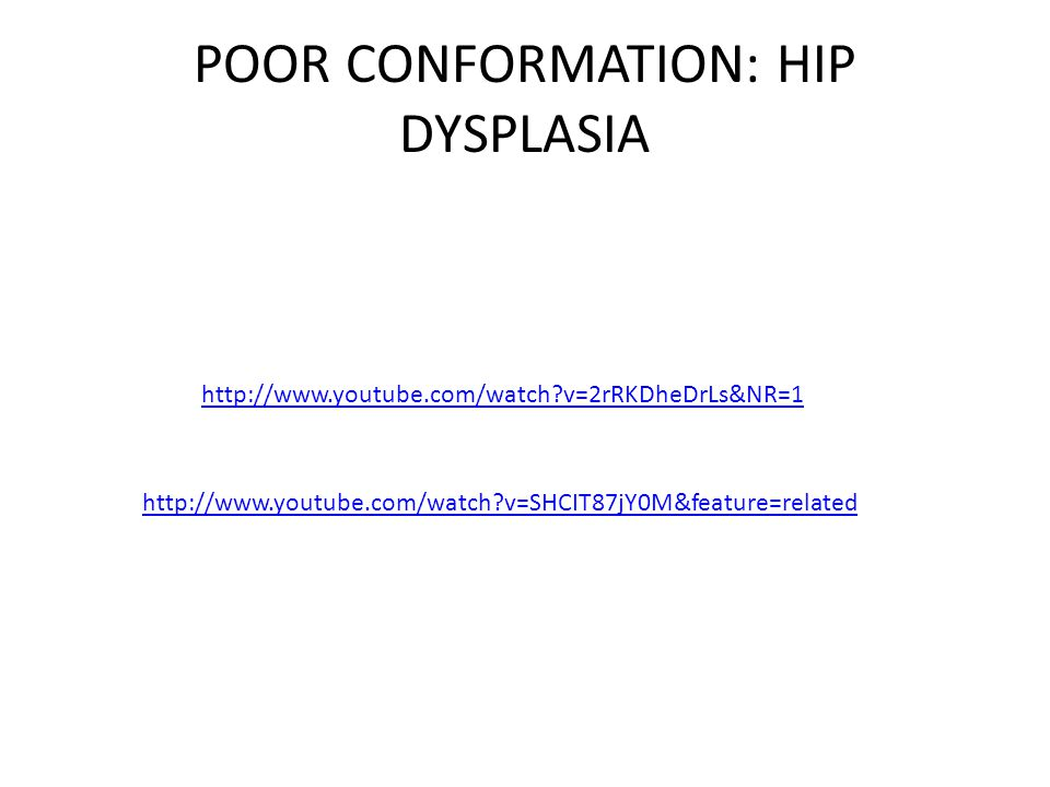 HIP DYSPLASIA TREATMENT FEMORAL HEAD OSTECTOMY False joint forms from scar/fibrous tissue