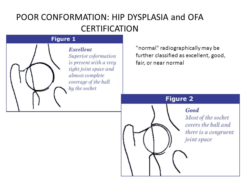 POOR CONFORMATION: HIP DYSPLASIA and OFA CERTIFICATION normal radiographically may be further classified as excellent, good, fair, or near normal