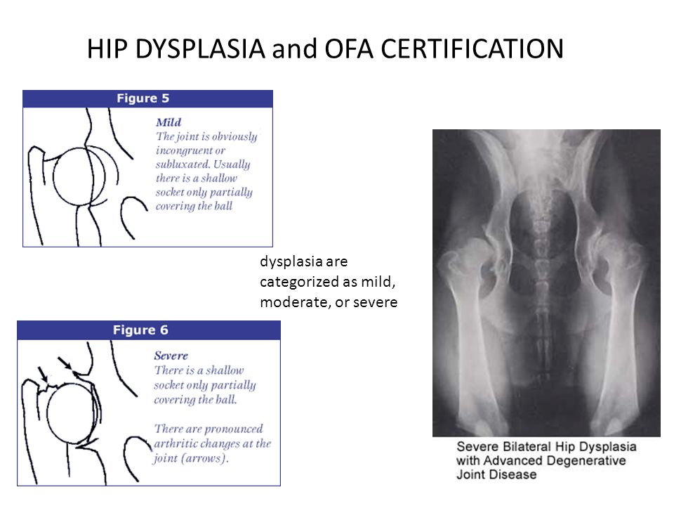 HIP DYSPLASIA and OFA CERTIFICATION dysplasia are categorized as mild, moderate, or severe