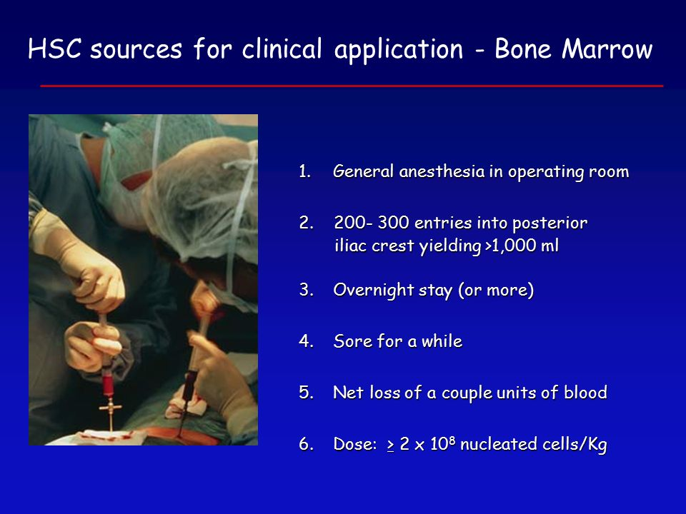 HSC sources for clinical application - Bone Marrow 1.General anesthesia in operating room 2.