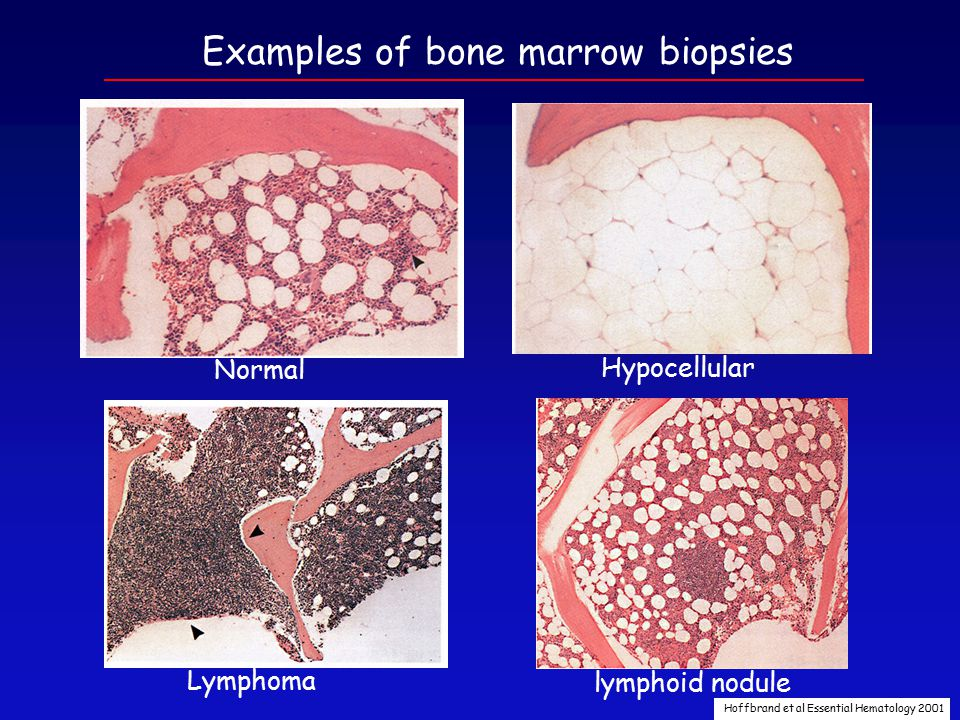 Aplastic Anemia (AA) Failure of the marrow to produce adequate numbers of blood cells in the absence of malignancy or dysplasia.