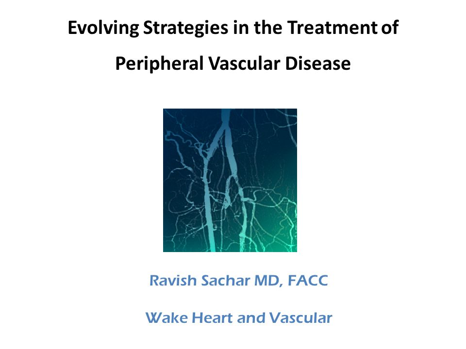 Evolving Strategies in the Treatment of Peripheral Vascular Disease Ravish Sachar MD, FACC Wake Heart and Vascular