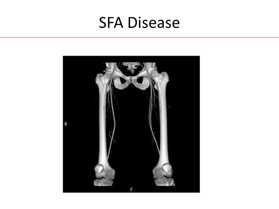 SFA Disease
