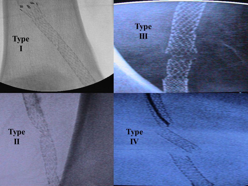 Type I Type II Type III Type IV