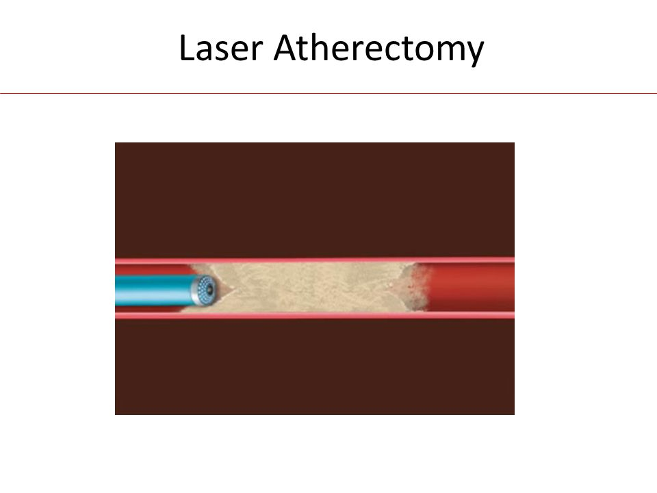 Laser Atherectomy