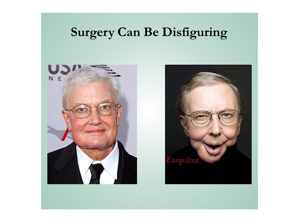 Surgery Can Be Disfiguring