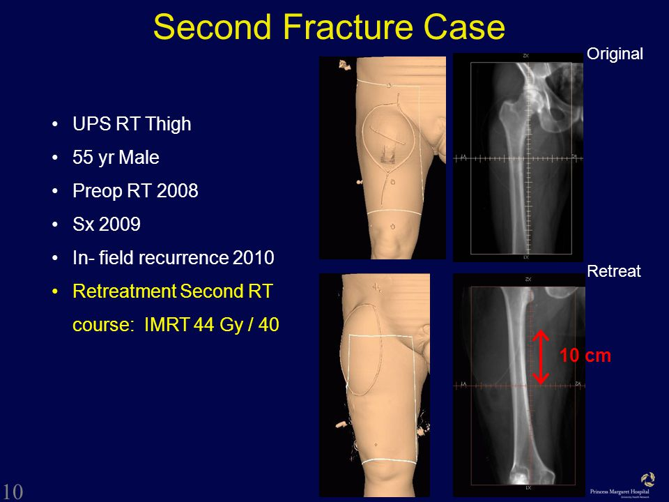 10 Second Fracture Case Original Retreat 10 cm UPS RT Thigh 55 yr Male Preop RT 2008 Sx 2009 In- field recurrence 2010 Retreatment Second RT course: IMRT 44 Gy / 40