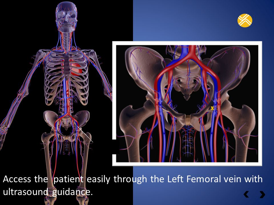 Catheter entry-point F EMORAL ACCESS VEIN Access the patient easily through the Left Femoral vein with ultrasound guidance.