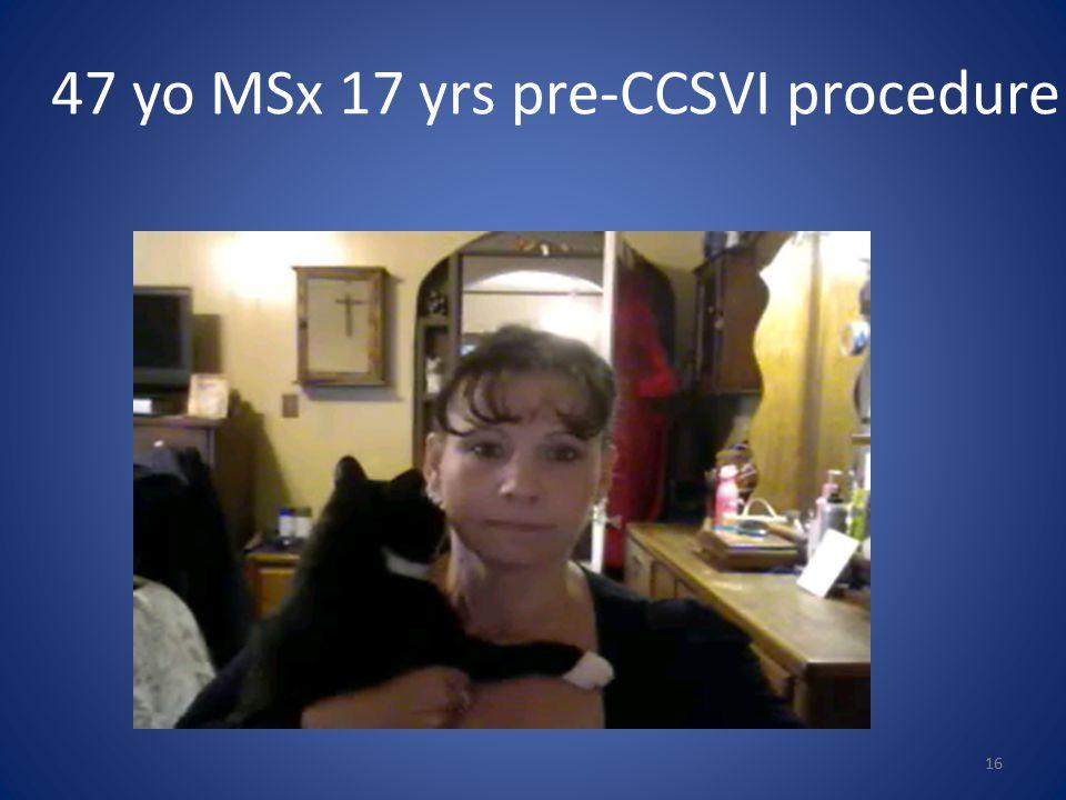 47 yo MSx 17 yrs pre-CCSVI procedure 16
