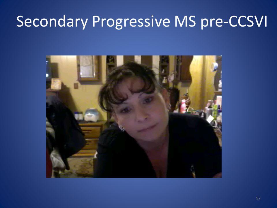 Secondary Progressive MS pre-CCSVI 17