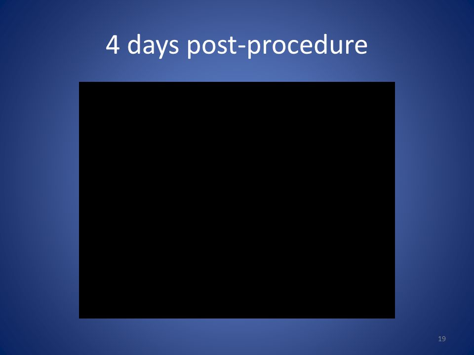 4 days post-procedure 19