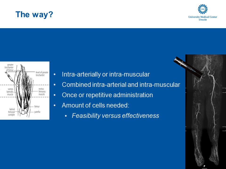 The way? Intra-arterially or intra-muscular Combined intra-arterial and intra-muscular Once or repetitive administration Amount of cells needed: Feasi