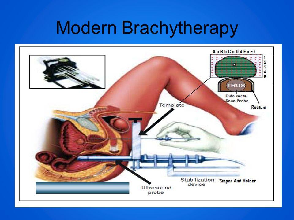 Modern Brachytherapy
