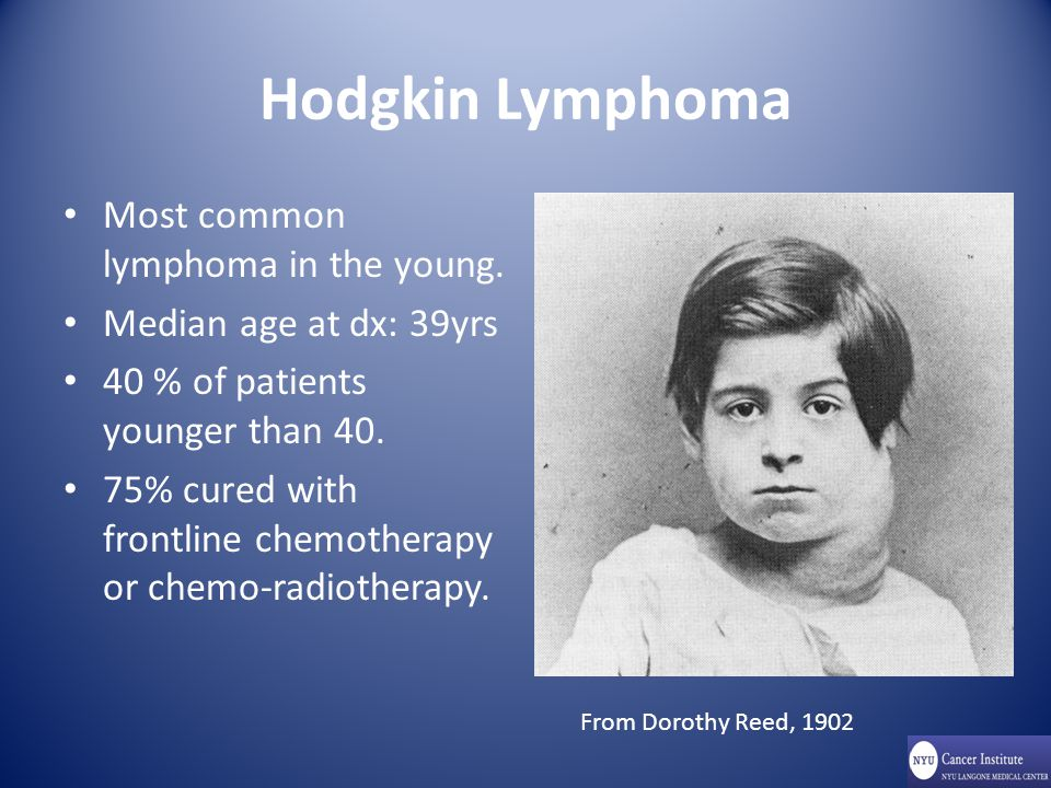 Hodgkin Lymphoma Most common lymphoma in the young.