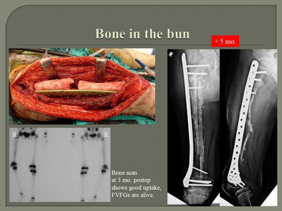 RR Bone scan at 3 mo. postop shows good uptake, FVFGs are alive. + 5 mo.