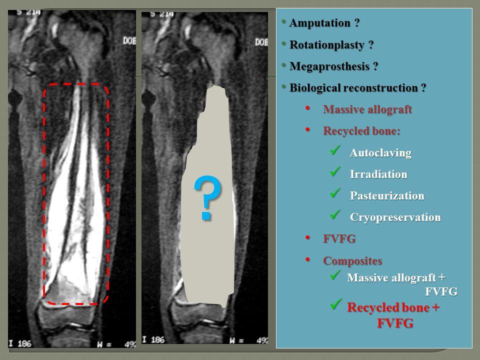 ? Amputation ? Amputation ? Rotationplasty ? Rotationplasty ? Megaprosthesis ? Megaprosthesis ? Biological reconstruction ? Biological reconstruction
