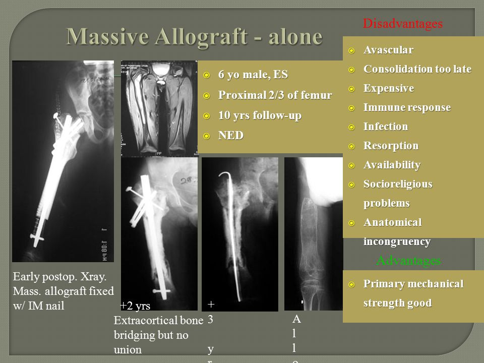  6 yo male, ES  Proximal 2/3 of femur  10 yrs follow-up  NED Early postop. Xray. Mass. allograft fixed w/ IM nail +3 yrs Antiobiotic rod due to in