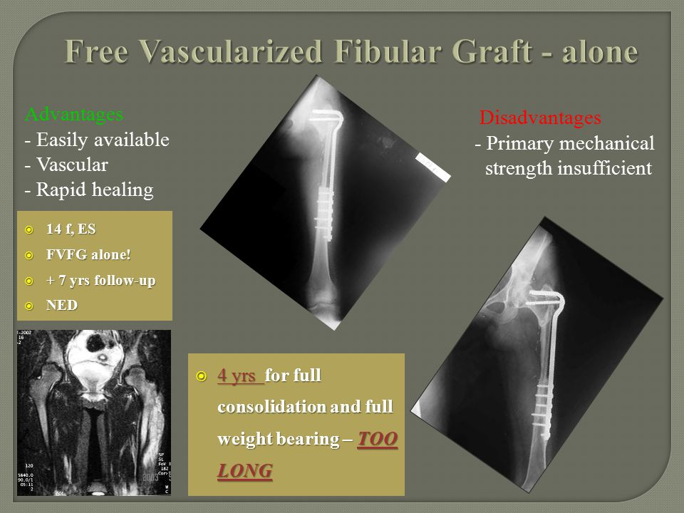  14 f, ES  FVFG alone!  + 7 yrs follow-up  NED  4 yrs for full consolidation and full weight bearing – TOO LONG Advantages - Easily available - V