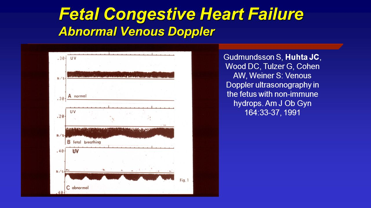 Fetal Congestive Heart Failure Abnormal Venous Doppler Gudmundsson S, Huhta JC, Wood DC, Tulzer G, Cohen AW, Weiner S: Venous Doppler ultrasonography