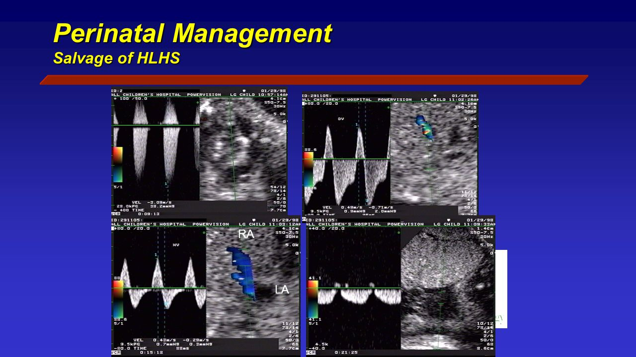 Perinatal Management Salvage of HLHS RA LA