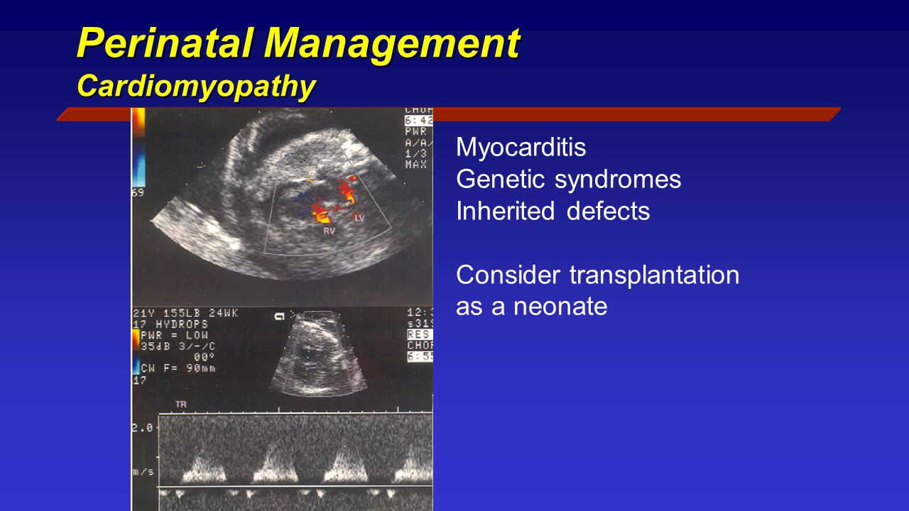 Perinatal Management Cardiomyopathy Myocarditis Genetic syndromes Inherited defects Consider transplantation as a neonate