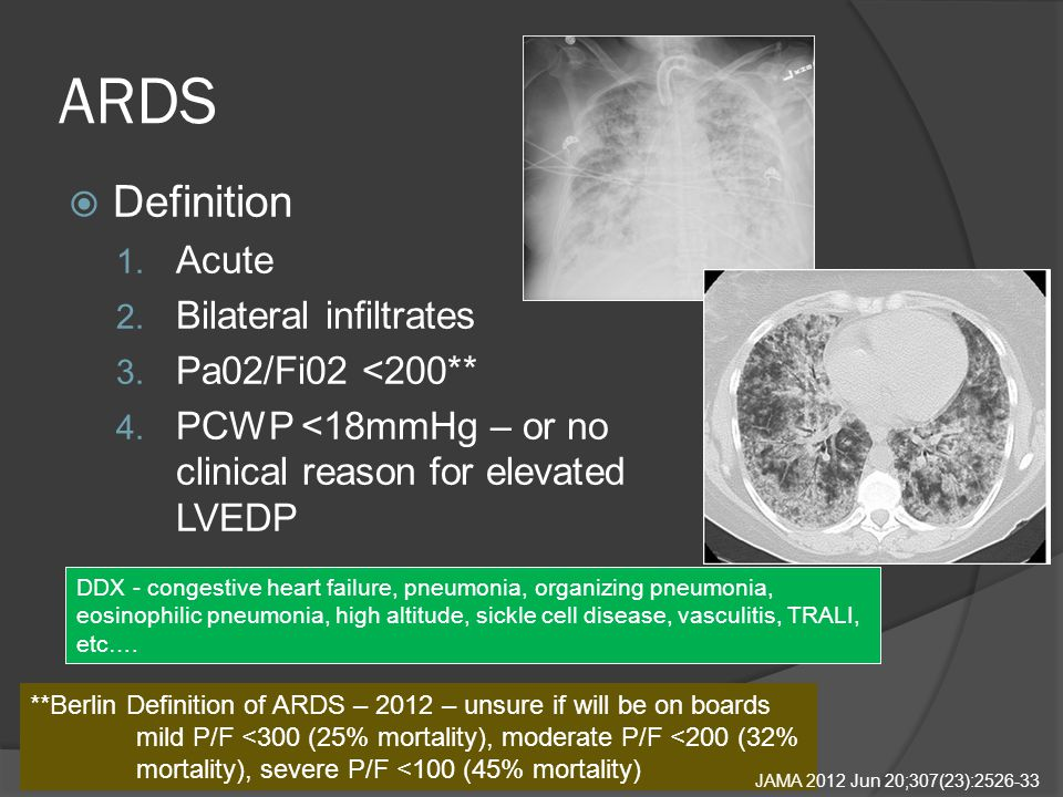 ARDS  Definition 1. Acute 2. Bilateral infiltrates 3.