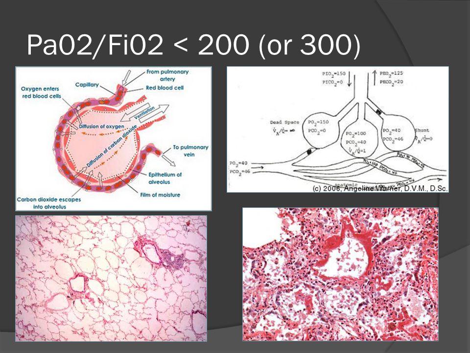 Pa02/Fi02 < 200 (or 300)