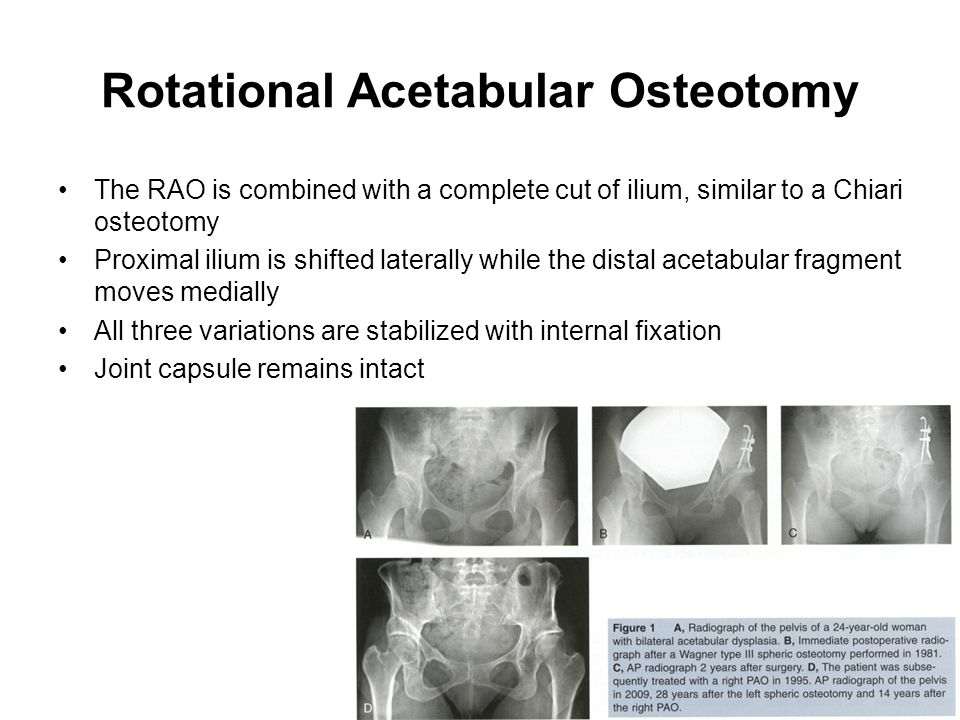 Rotational Acetabular Osteotomy The RAO is combined with a complete cut of ilium, similar to a Chiari osteotomy Proximal ilium is shifted laterally wh