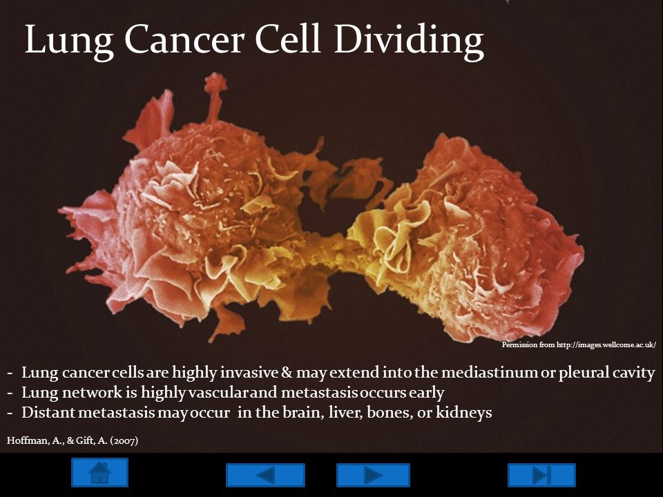 Lung Cancer Cell Dividing - Lung cancer cells are highly invasive & may extend into the mediastinum or pleural cavity - Lung network is highly vascula