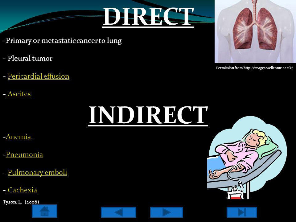 DIRECT -Primary or metastatic cancer to lung - Pleural tumor - Pericardial effusionPericardial effusion - Ascites Ascites Permission from http://image