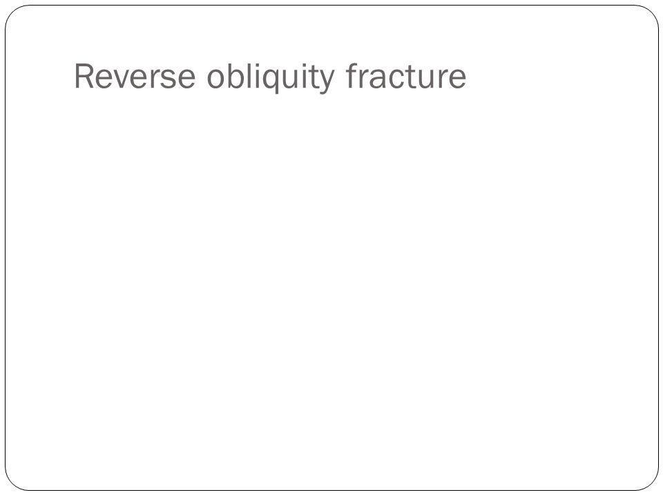 Reverse obliquity fracture